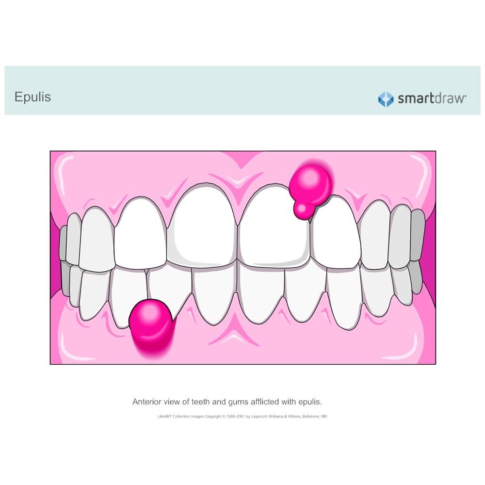 Example Image: Epulis