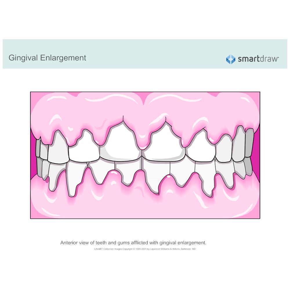 Example Image: Gingival Enlargement