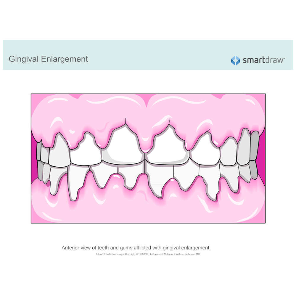 Example Image: Gingival Enlargement