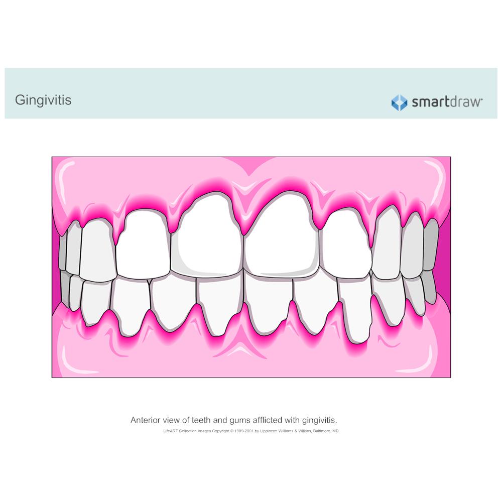 Example Image: Gingivitis