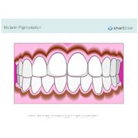 Melanin Pigmentation