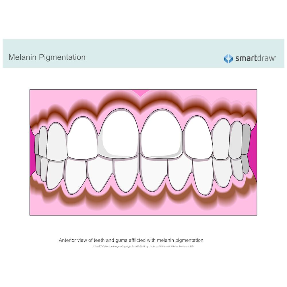 Example Image: Melanin Pigmentation