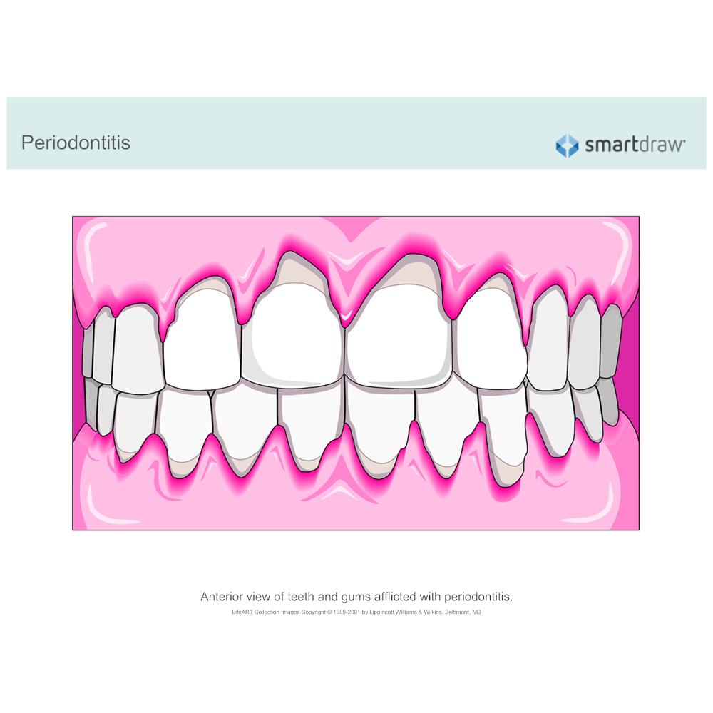 Example Image: Periodontitis