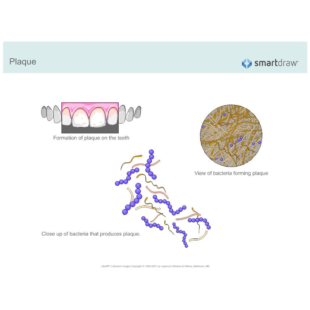Example Image: Plaque