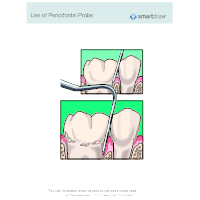 Use of Periodontal Probe