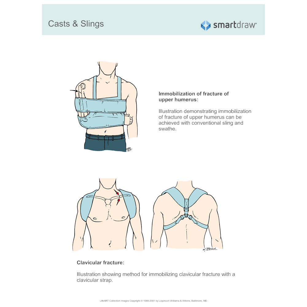 Example Image: Casts & Slings