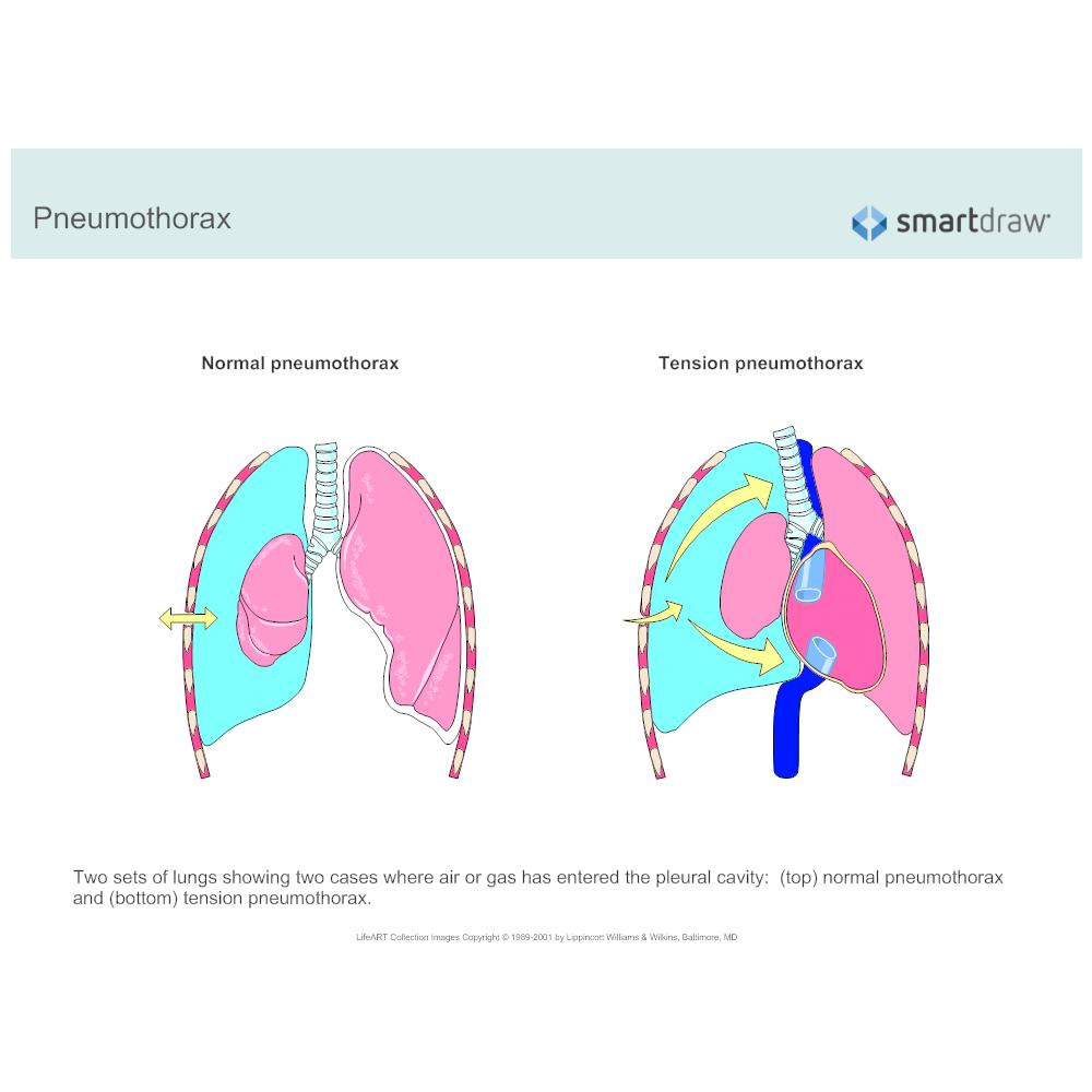 Example Image: Pneumothorax