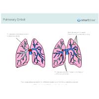Pulmonary Emboli