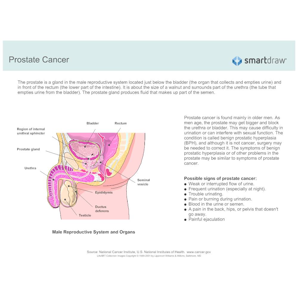 Example Image: Prostate Cancer