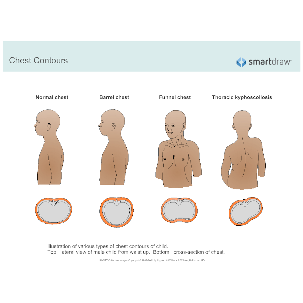 Example Image: Chest Contours