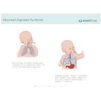Meconium Aspiration Syndrome