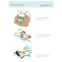 Tracheostomy Care