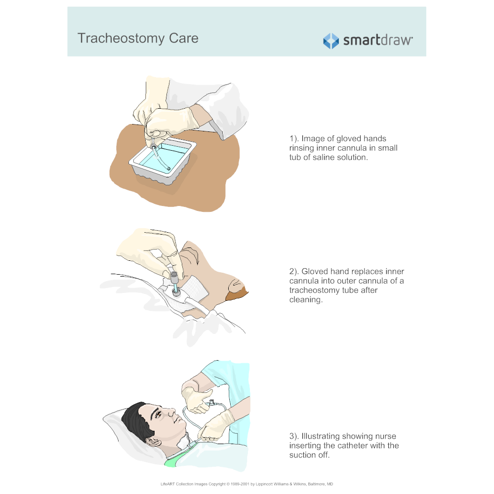 Example Image: Tracheostomy Care