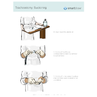 Tracheostomy - Suctioning