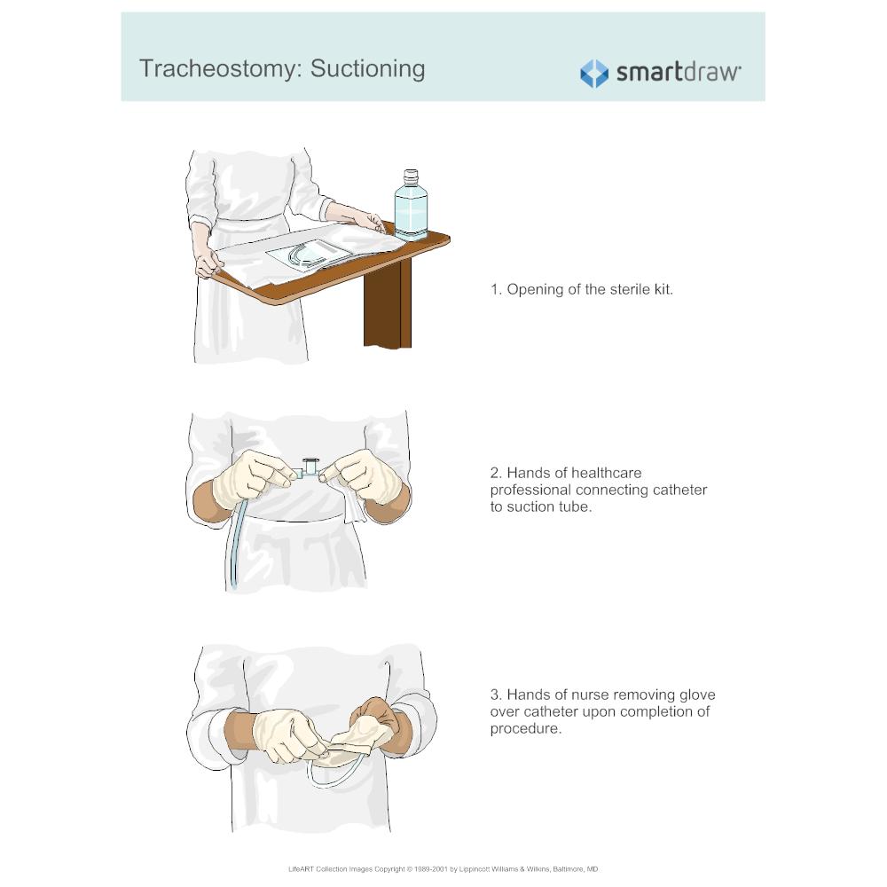 Example Image: Tracheostomy - Suctioning