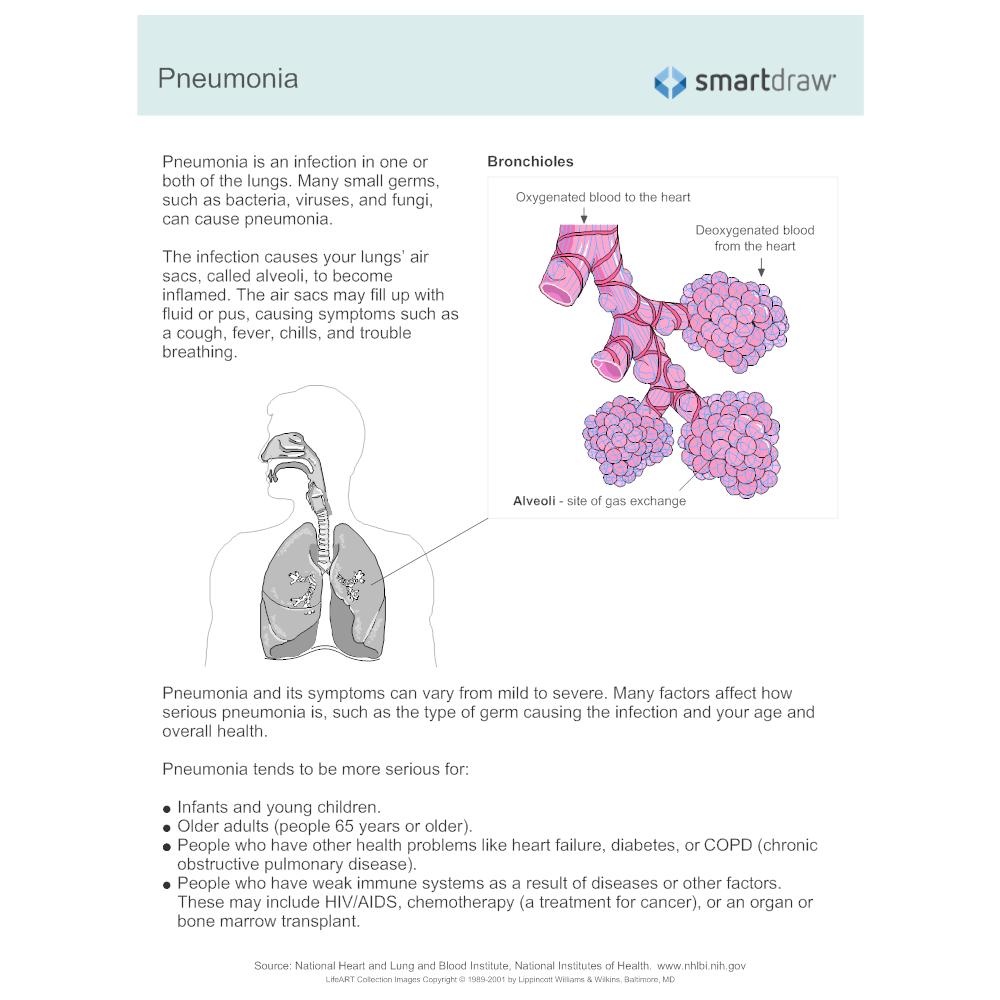 Example Image: Diabetes Complications - Pneumonia