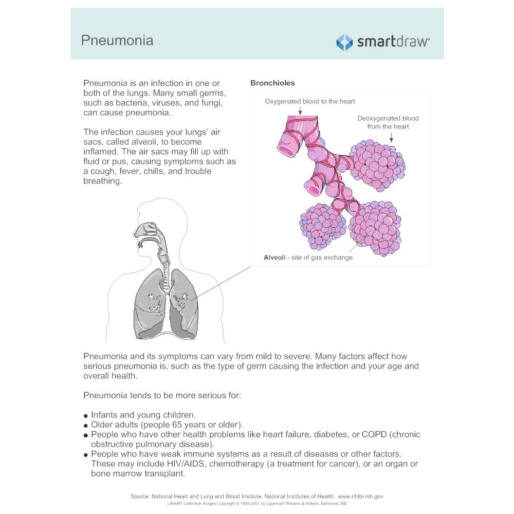 Example Image: Diabetes Complications - Pneumonia
