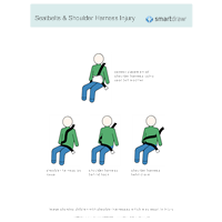 Seatbelts & Shoulder Harness Injury