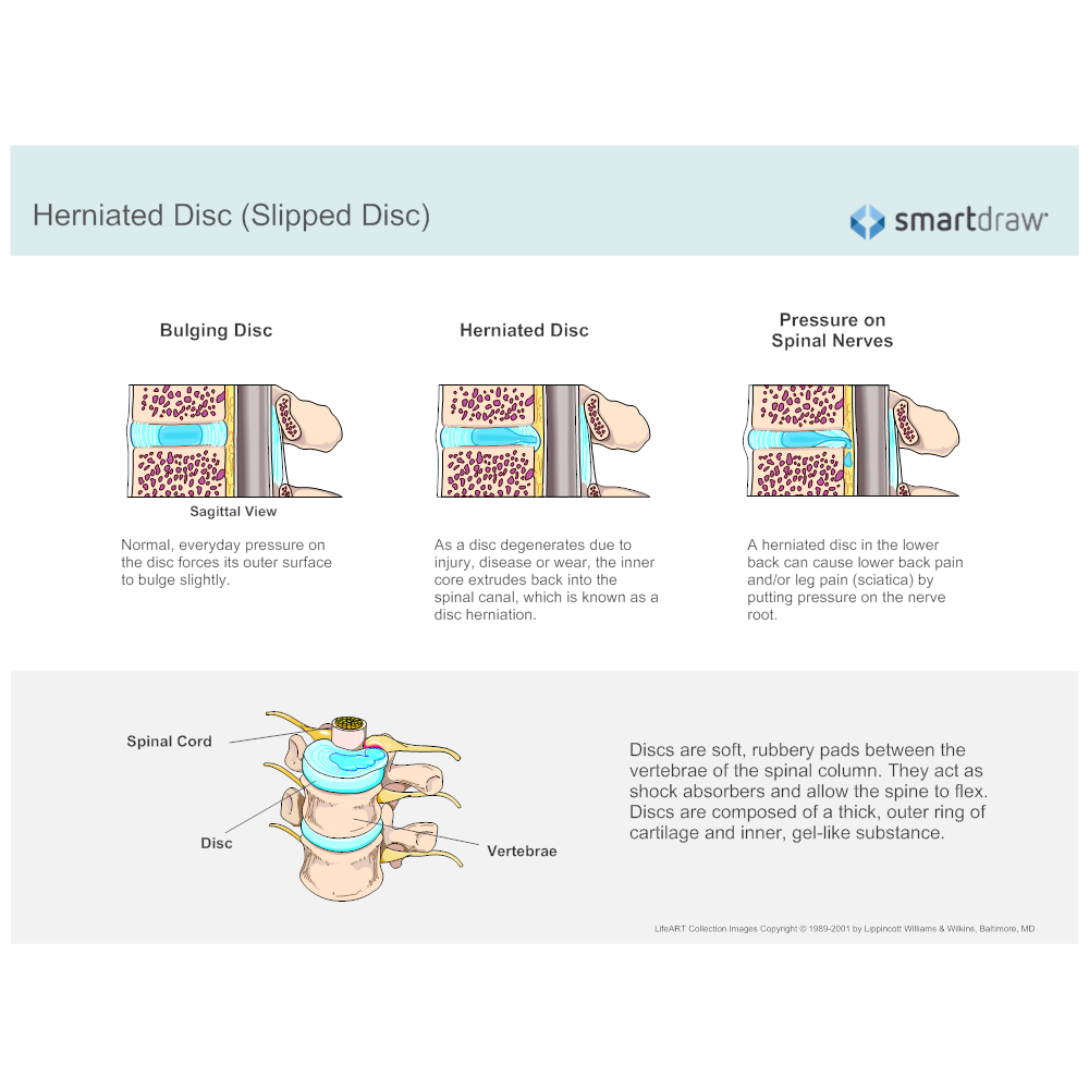 Example Image: Herniated Disc