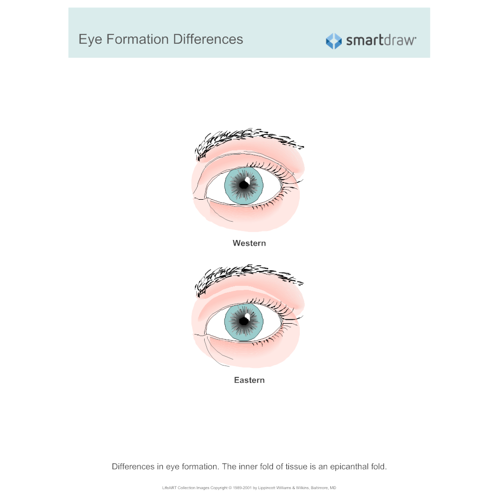 Example Image: Eye Formation Differences