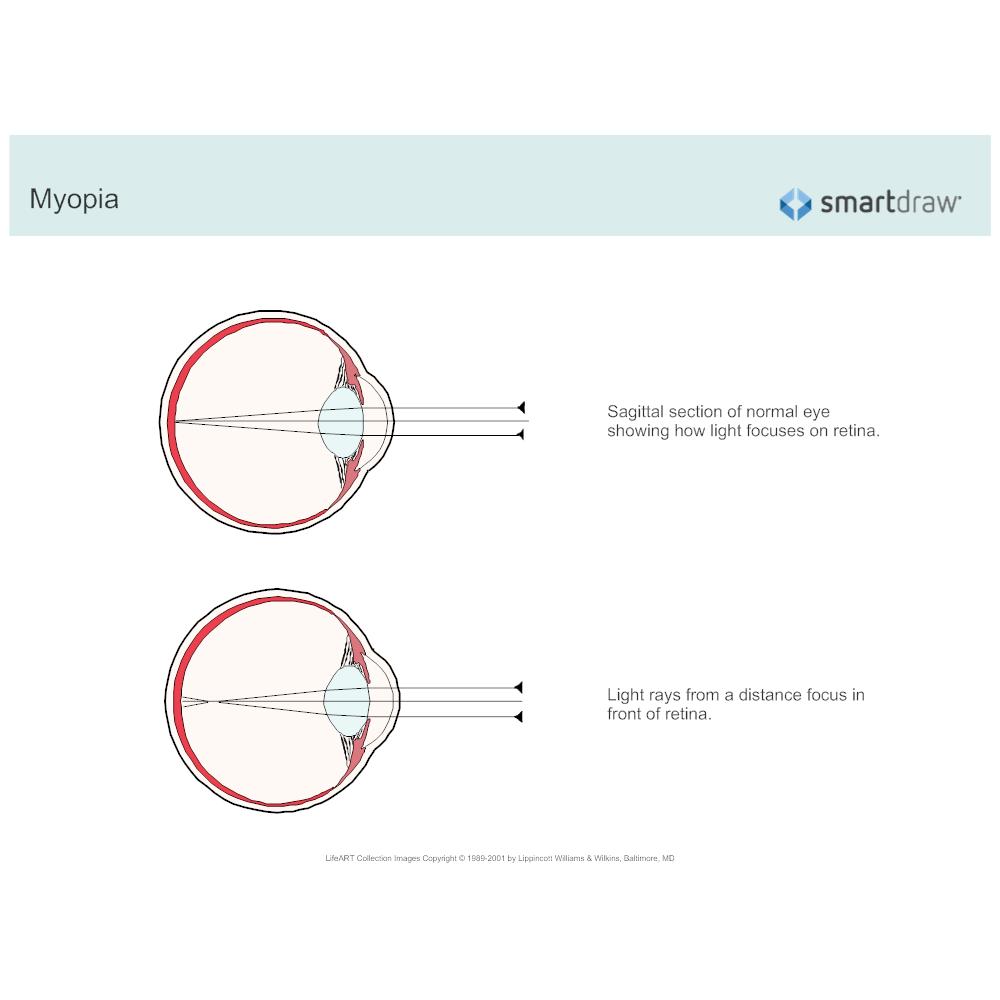 Example Image: Myopia
