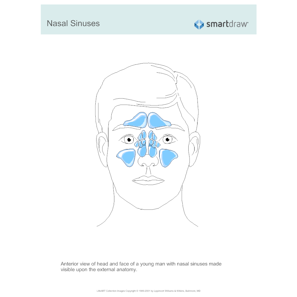 Example Image: Nasal Sinuses