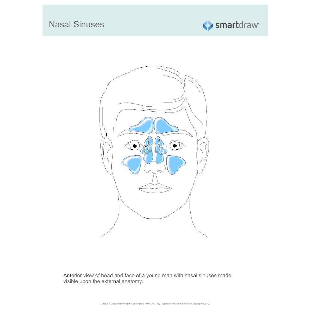 Example Image: Nasal Sinuses