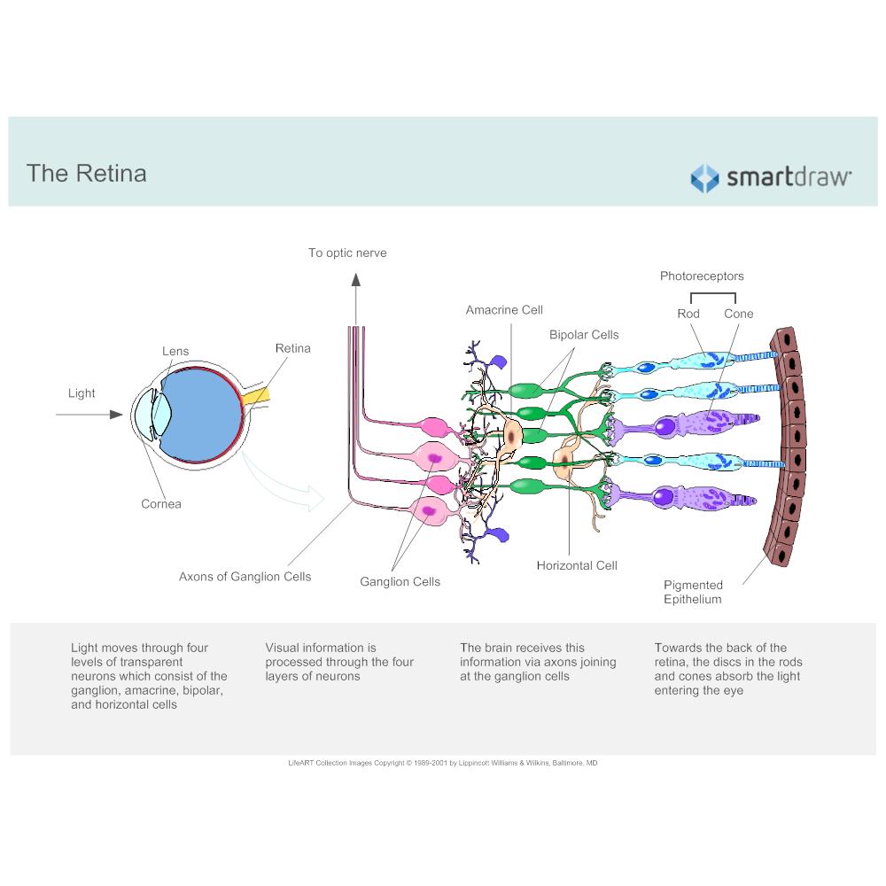 Example Image: Retina - 2