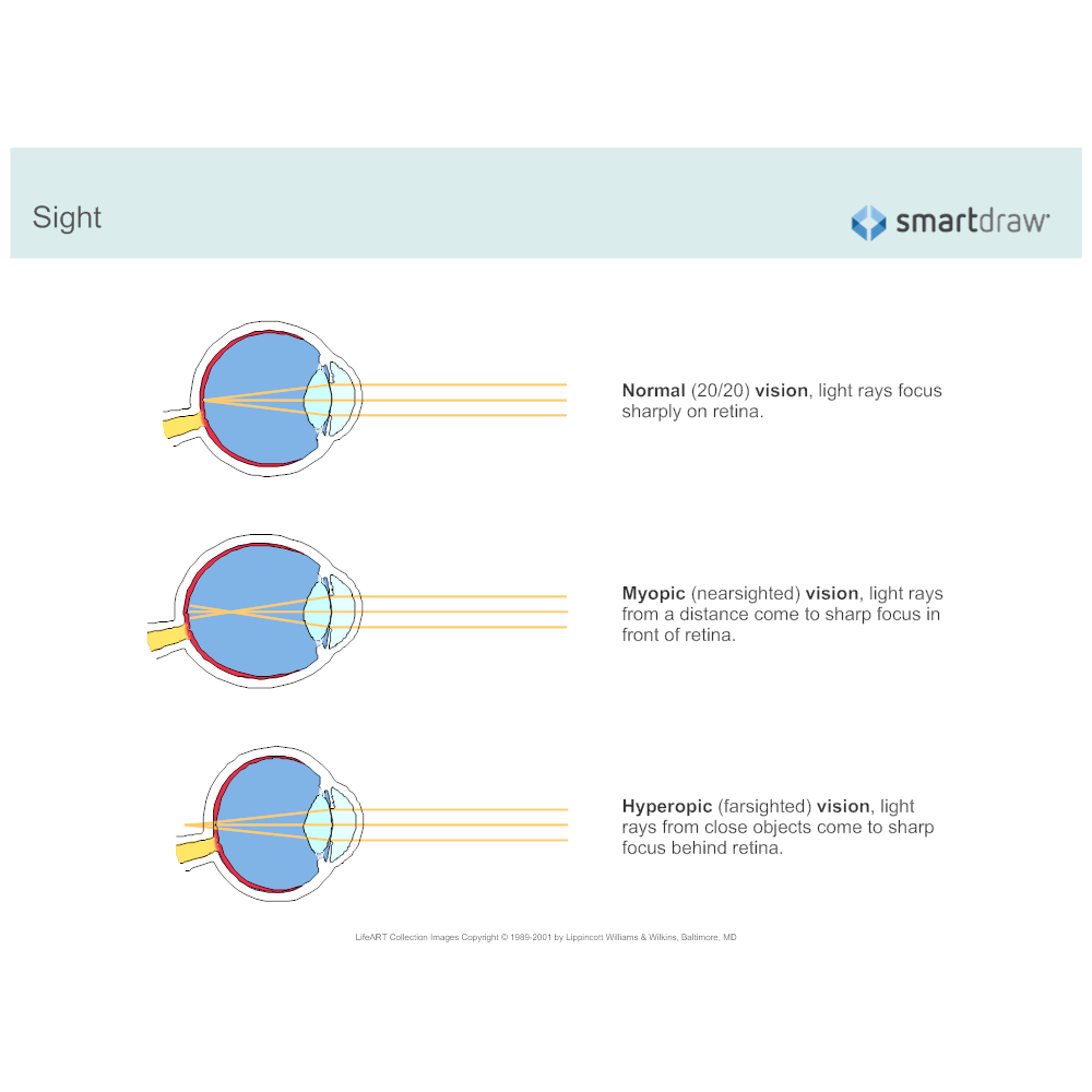 Example Image: Sight