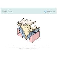 Superior Sinus