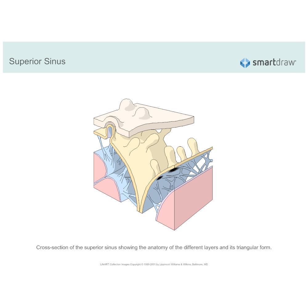 Example Image: Superior Sinus