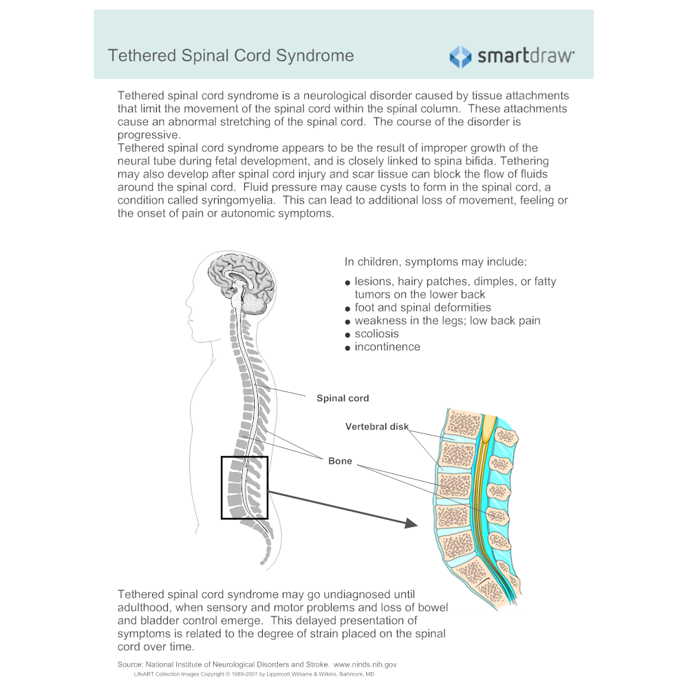 Example Image: Malformations - Tethered Spinal Cord Syndrome