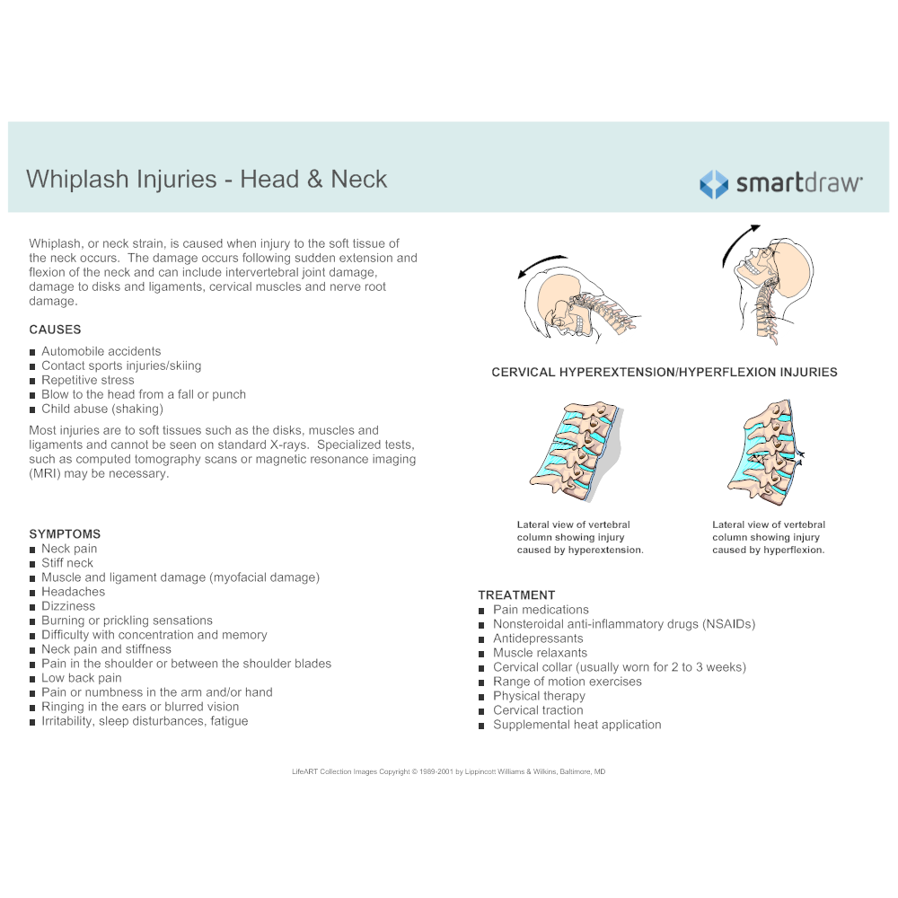 Example Image: Whiplash