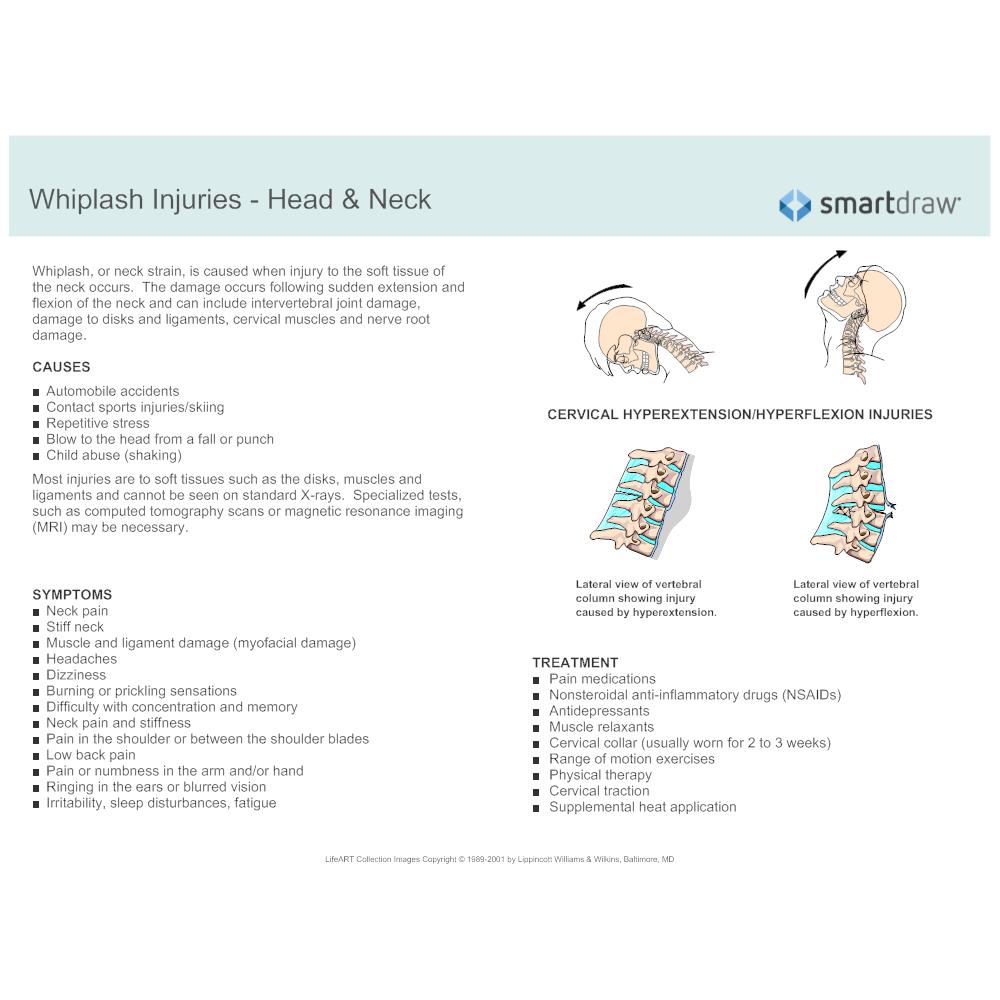 Example Image: Whiplash