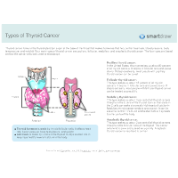 Types of Thyroid Cancer
