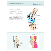 Total Joint Reconstruction