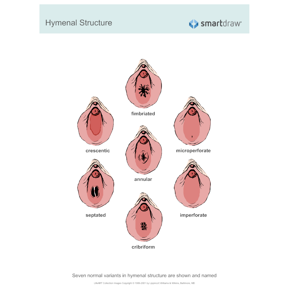 Example Image: Hymenal Structure